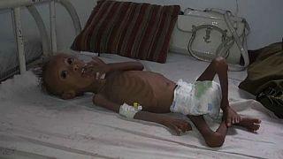 Éhezés és blokád Jemenben