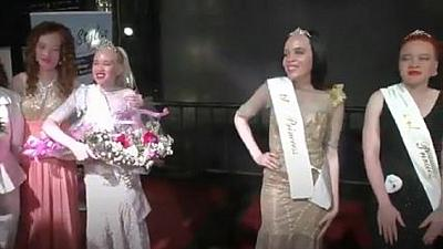 Zimbabwe crowns its first 'Miss Albino,' queen gets $85 prize money