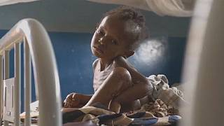 400,000 children risk death in the Kasai region of DR Congo-UNICEF
