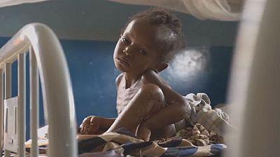 RDC : l'Unicef sonne de nouveau l'alarme pour les enfants du Kasaï