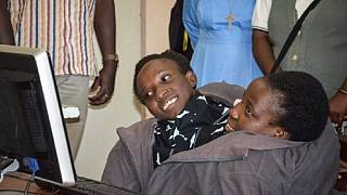 Tanzanians pay last respects to conjoined twins