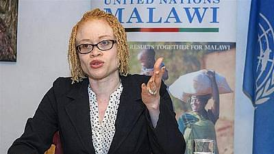 Malawi to field six candidates with albinism in upcoming elections to tackle stigma