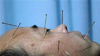 Acupuncture popular with Congolese patients