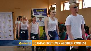 Beauty pageant for Albinos hold in Uganda [The Morning Call]