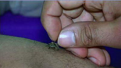 Égypte: l'apithérapie, un traitement alternatif à base de piqûres d'abeilles