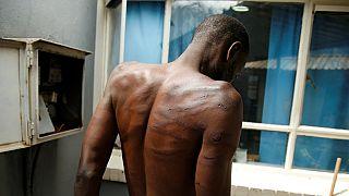 """Zimbabwe : l'armée épinglée pour des """"tortures systématiques"""""""