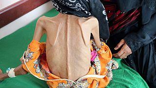 Starving girl shows devastating impact of Yemeni war