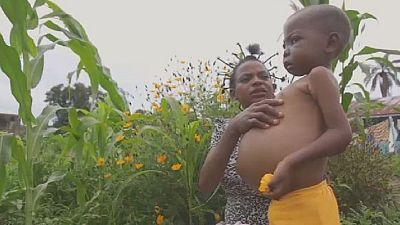 RDC : plus de 260 000 enfants malnutris dans le Kasaï