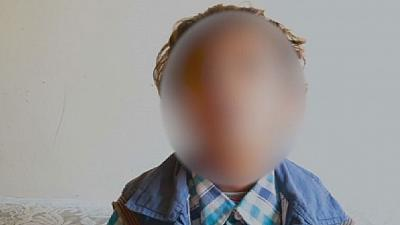 Yemeni war: 8-year-old boy left partially blind