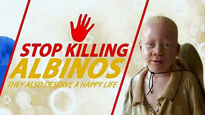 Malawi sentences man to death for killing an albino teenager