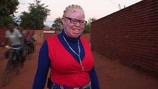 Au Malawi, les élections ravivent les craintes des albinos