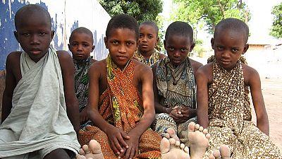 """Sénégal : les enfants ''talibés'' subissent des """"souffrances énormes"""" (HRW, PPDH)"""