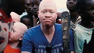 "Malawi: un ""fils"" de Salif Keita au service de la cause albinos"