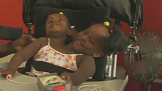 Senegalese conjoined twins defy odds in new Cardiff home