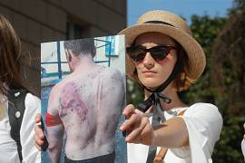 A woman holds a photo of a protester, beaten by police during a rally in Minsk, Belarus. August. 15, 2020