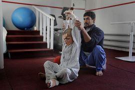 Afgan fizyoterapist Eimal'e egzersiz yaptırıyor