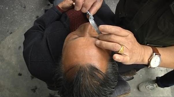 'Eye shaving': a traditional practice in China
