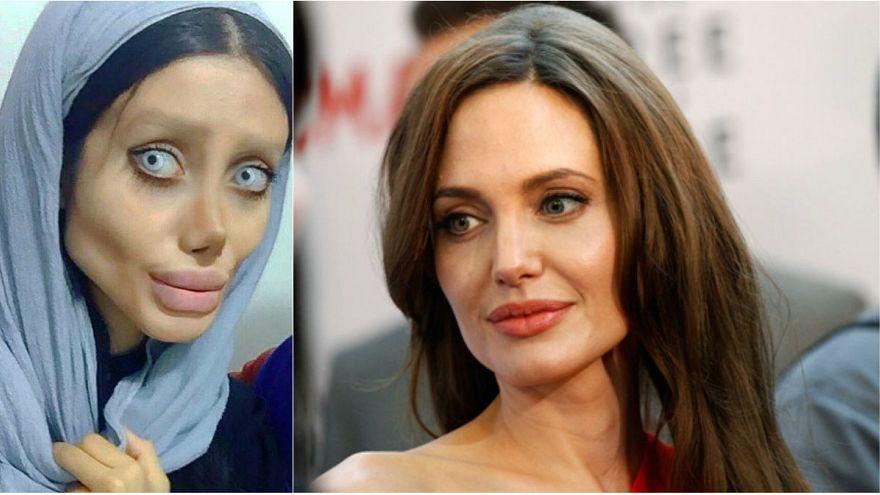 شابة إيرانية تجري عمليات تجميل لتشبه الممثلة الأميركية أنجلينا جولي