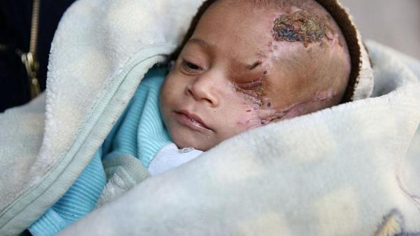 200 ezer gyerek él az öt éve ostrom alatt tartott Goutában