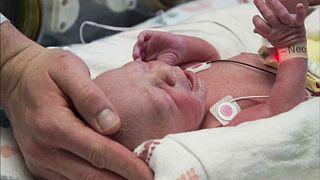 اولین نوزاد حاصل از رحم پیوندی در آمریکا متولد شد