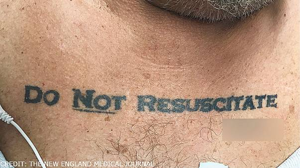 Patient's 'do not resuscitate' chest tattoo presents ethical dilemma for doctors