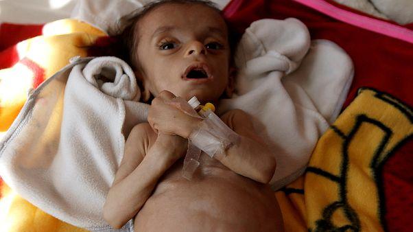 أكثر من 8 ملايين يمني على حافة المجاعة