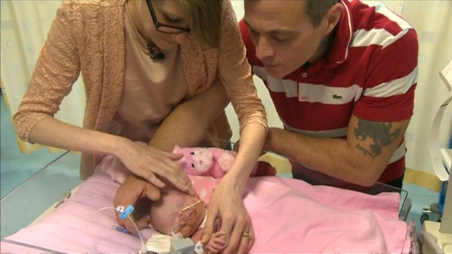 Sauvée après être née avec un coeur hors du corps