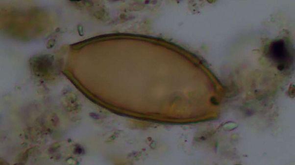 Ανακαλύφθηκαν στην Κέα τα παρασιτικά σκουλήκια που περιέγραφε ο Ιπποκράτης