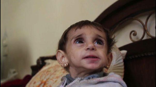 El hambre a las puertas de Damasco