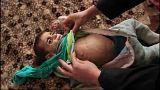 La fame dei bambini in Siria