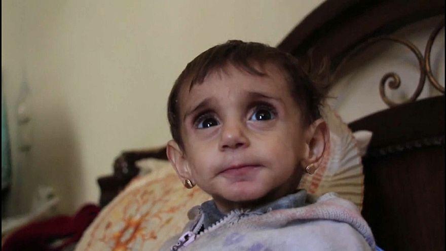 Crianças morrem de fome na Síria