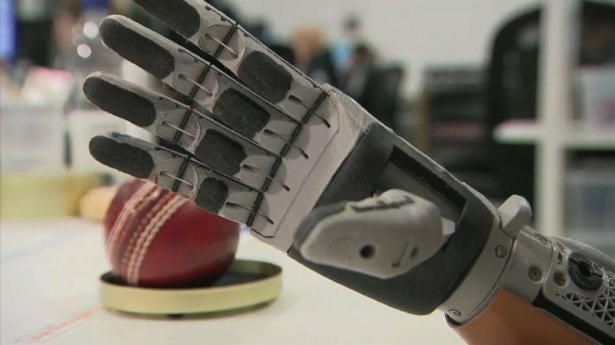 """Une main """"bionique"""" pour Cameron, 10 ans"""