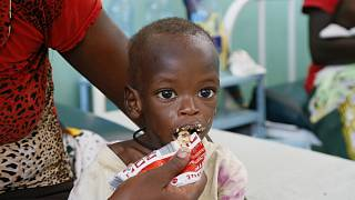 Treating children with suffering from malnutrition