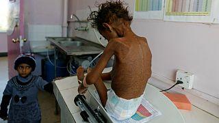 سوءتغذیه کودکان یمن