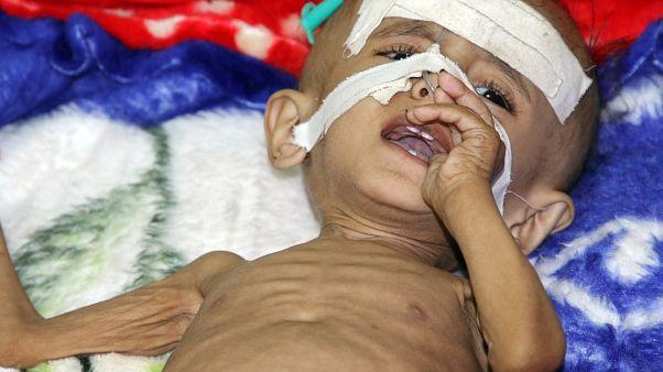 طفل يمني يعاني المرض في ظل استمرار الحصار