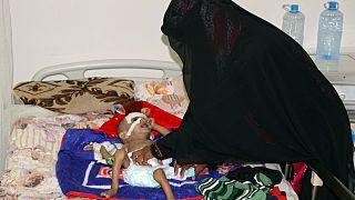 کودکی یمنی که از سوءتغذیه رنج می برد