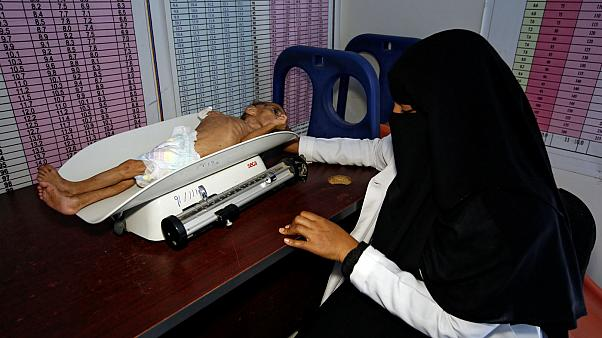 a malnutrition treatment center in the Red Sea port city of Hodeida
