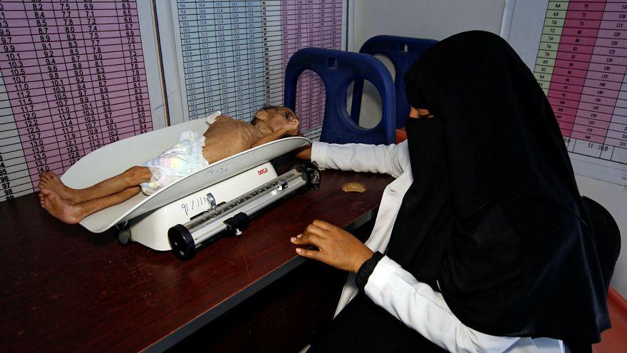 a malnutrition treatment center in the Red Sea port city of Hodeida