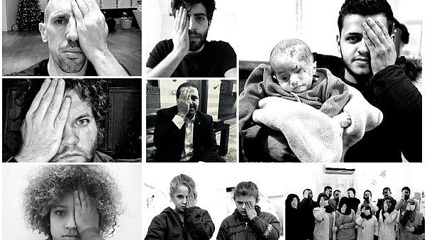 چشم از دست رفته کودک سوری؛ نماد دفاع از غیرنظامیان سوریه