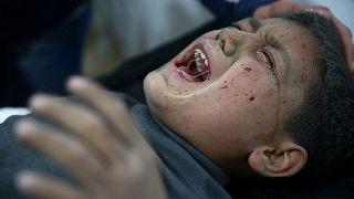 Verletzer Junge in Ghouta in Syrien