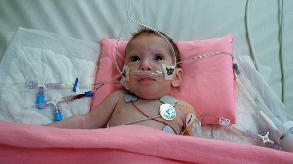 Szétválasztották a gázai sziámi ikreket, az egyik kislány túlélte a műtétet