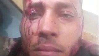 Νεκρός ο «Ράμπο της Βενεζουέλας»