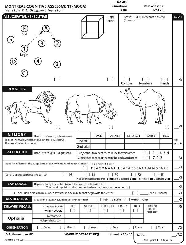 MoCA-Test