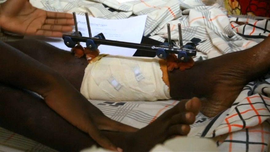 Le Ong lanciano l'allarme: grave crisi umanitaria in Centrafrica