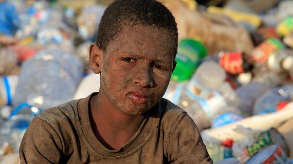 Yemen'deki ölümlerin asıl sebebi açlık ve salgın hastalık