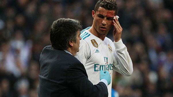 شاهد: لحظة إصابة كريستيانو رونالدو بعد إحرازه هدفه الثاني في مرمى ديبورتيفو لاكورونيا