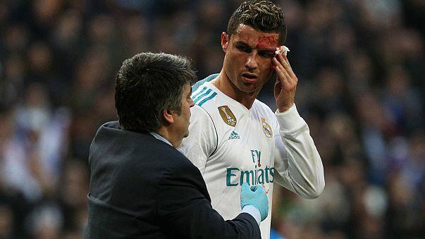 رونالدو چهره خونینش را با تلفن پزشک وارسی کرد