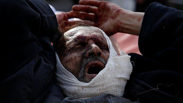 Masacre en Kabul: cerca de 100 muertos