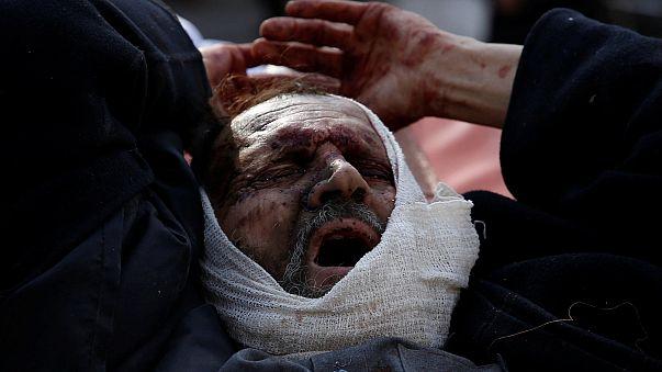 Кабул: число жертв достигает 100 человек