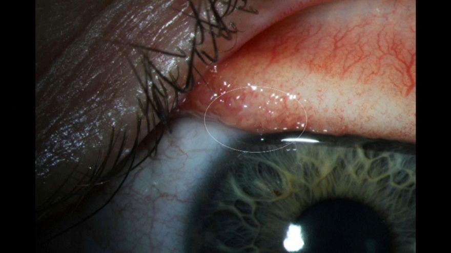 """أول إنسان يصاب بديدان العيون """"ثيلازيا غولوسيا"""" التي تصيب الماشية"""